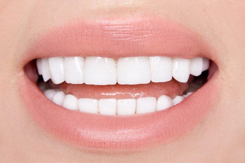 Vikten av att välja rätt tandläkare